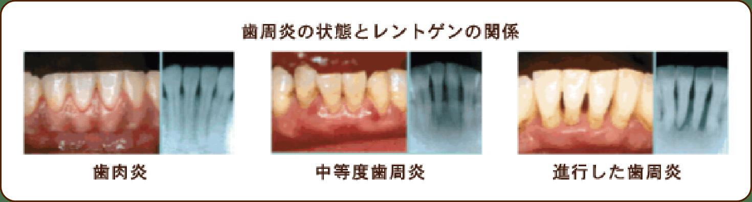 デジタルレントゲン撮影によるレントゲン診査